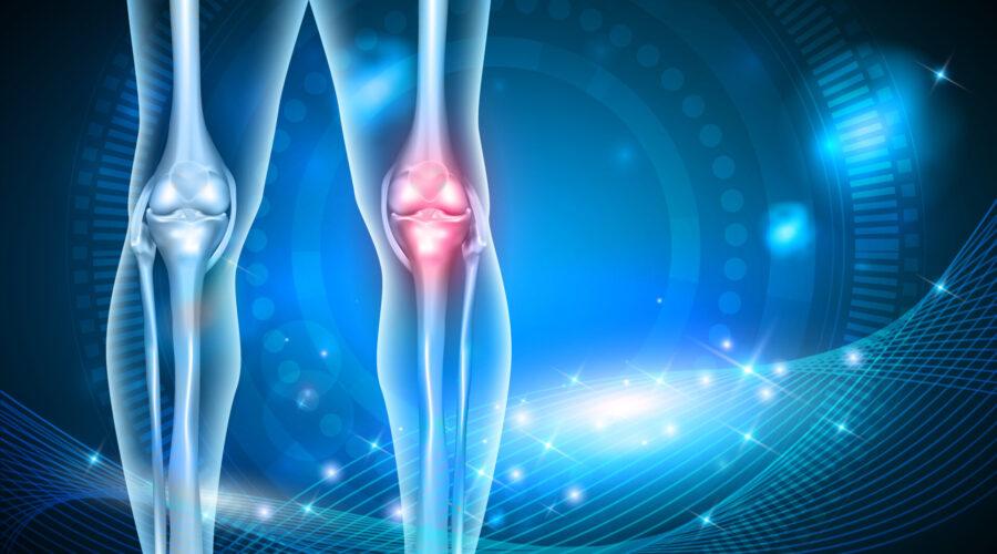 Knee System